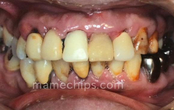 歯周病で腫れた前歯の歯茎