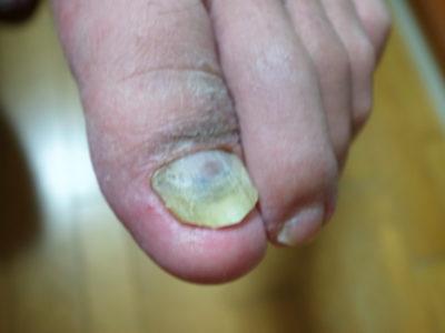 足の爪の黒いのはカビ?
